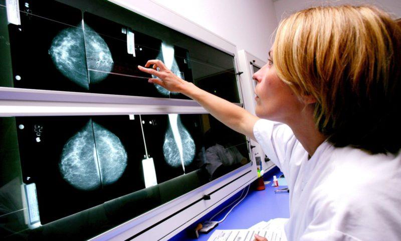 cum-previi-cancerul-mamar?-studiile-au-descoperit-indicii-importante